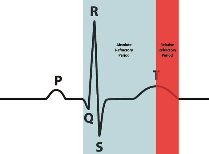 heart conduction erp effective refractory period