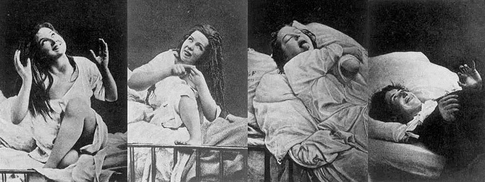 hysteria psychoanalytic theory mental illness sigmund freud