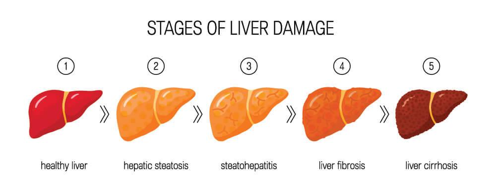 stages of liver damage alanine aminotransferase liver panel ALT AST albumin jaundice cirrhosis hepatitis