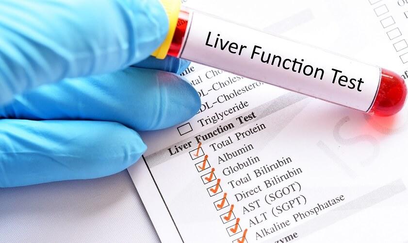 liver function tests panel ast alt bilurubin albumin total protein alanine aminotransferase aspartate