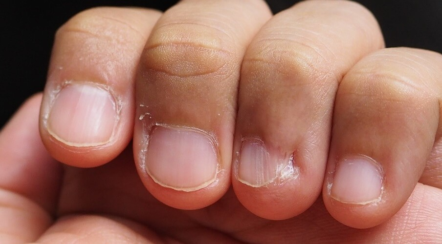 nailbiting bitten finger nails oral phase psychosexual freud