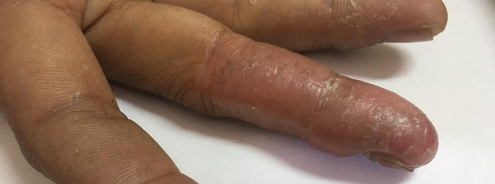 necrosis necrotic fingers extremities
