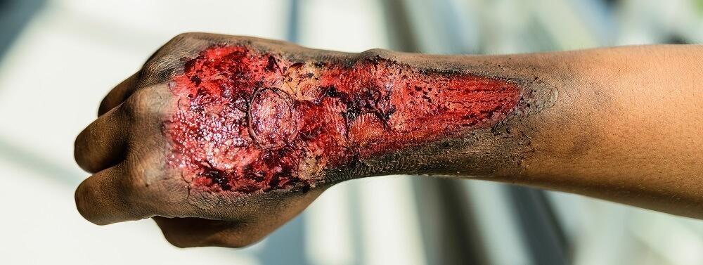 burn wound arm pain