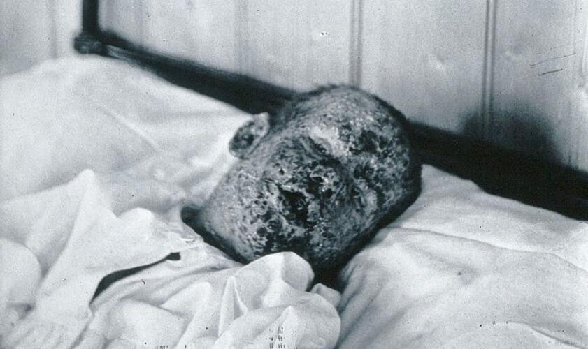 smallpox virus jenner vaccine