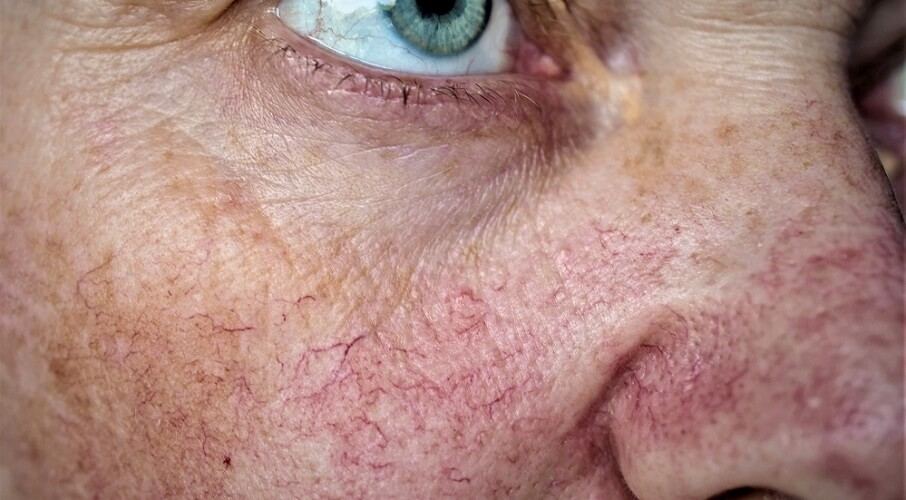 spider veins broken capillaries dilated face facial