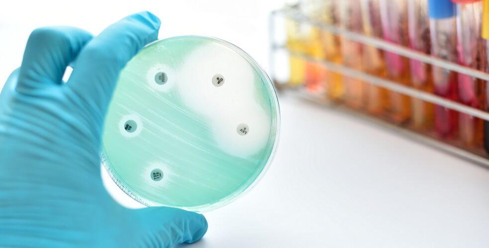 streptomycin antibiotics bactericide petri dish