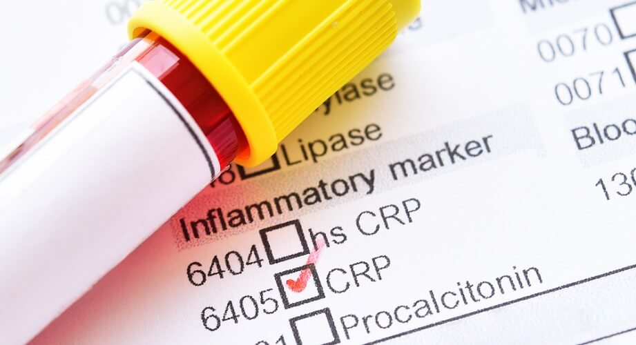 inflammatory marker crp c reactive protein glycoprotein
