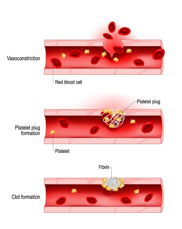Blood clotting is a process that needs to proceed to completion to save your life