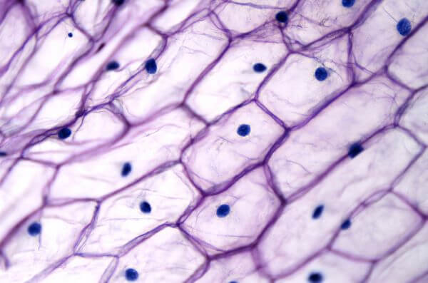 Every plant cell is surrounded by a cell wall