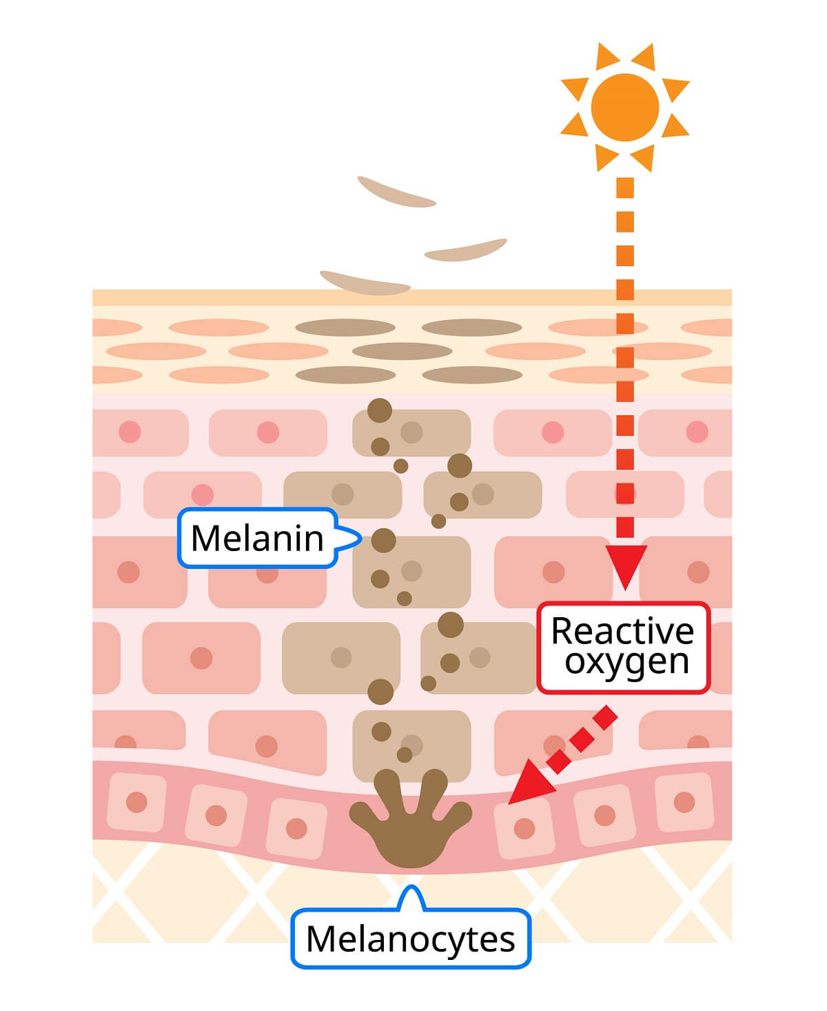The process of tanning is caused by the release of melanin stimulated by UV light damage.