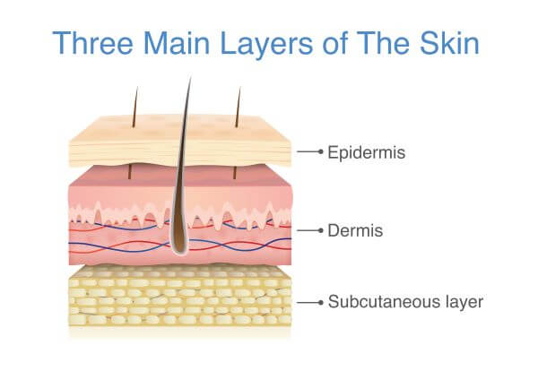 Skin is made up of three layers; the epidermis, the dermis, and the hypodermis