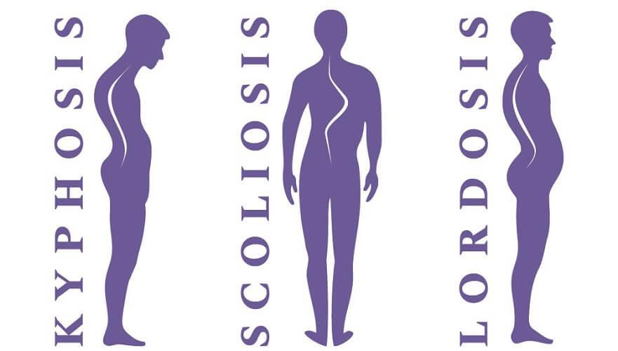 misalignment spine vertebrae back posture scoliosis lordosis kyphosis
