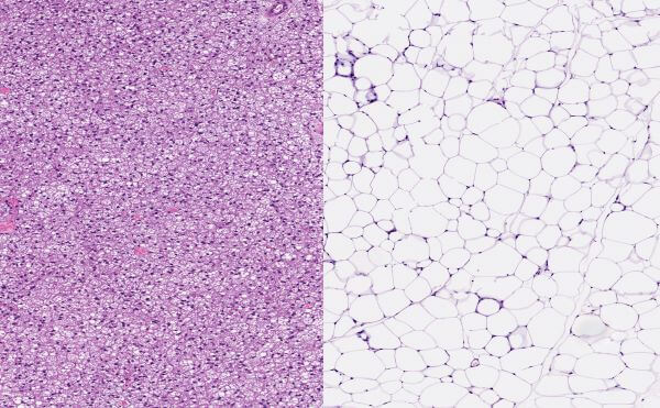Brown fat cells and white fat cells have different functions