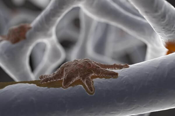Osteoclasts are found on the surface of bone tissue