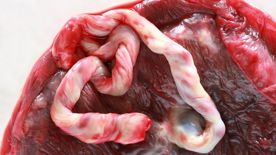 cord blood placenta umbilical cord stem cell research