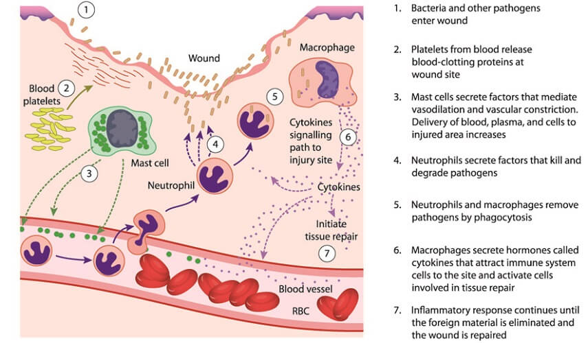 inflammatory response cytokines immunity
