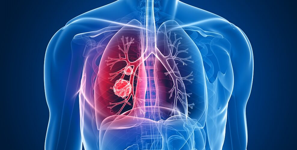 lung cancer small cell non-small squamous basal SCC BCC smoking asbestos