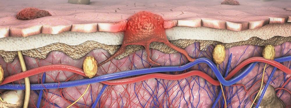metastasis tumor cancer cell
