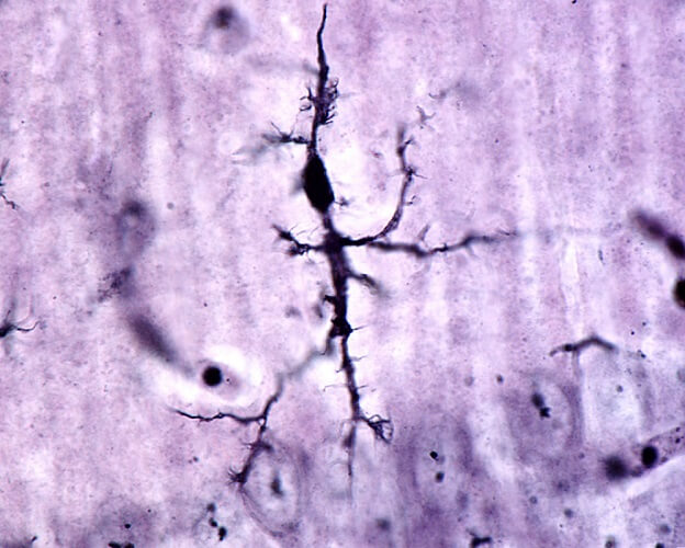 microglia brain neuron