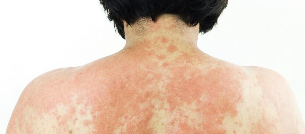 allergy histamine rash allergic reaction