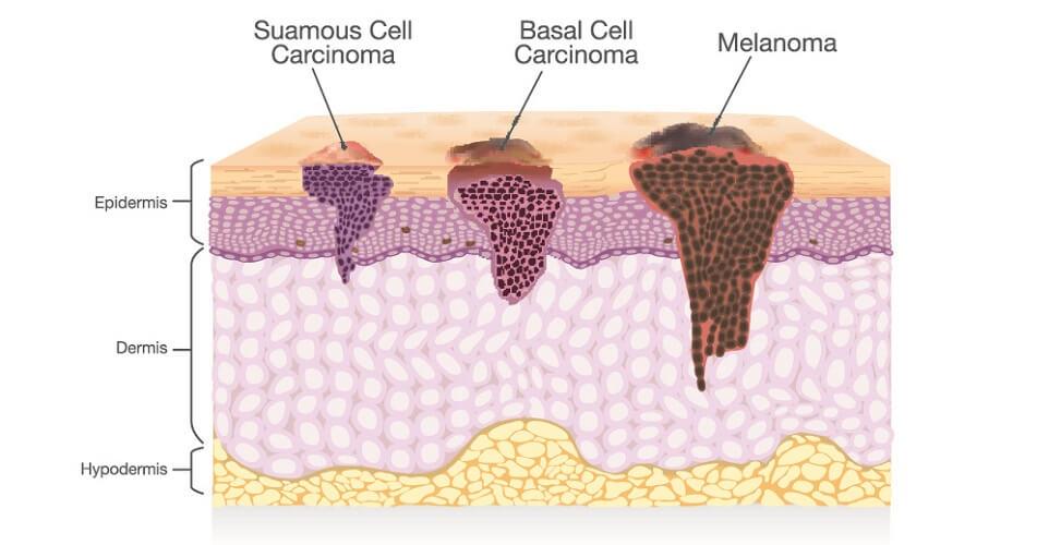 skin cancer types squamous basal cell carcinoma skin cancer melanoma