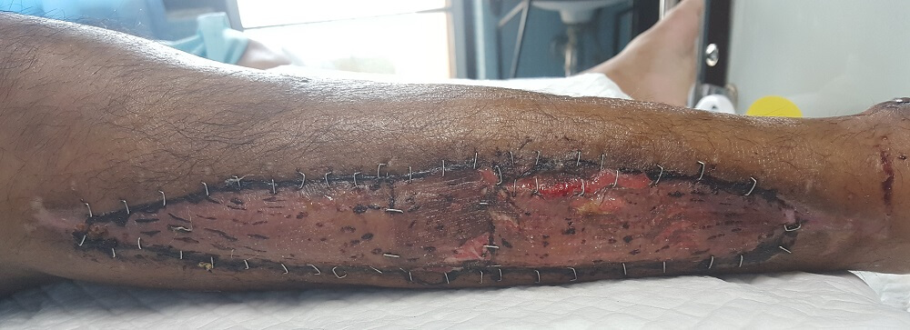 skin graft burn basal cells regeneration healing