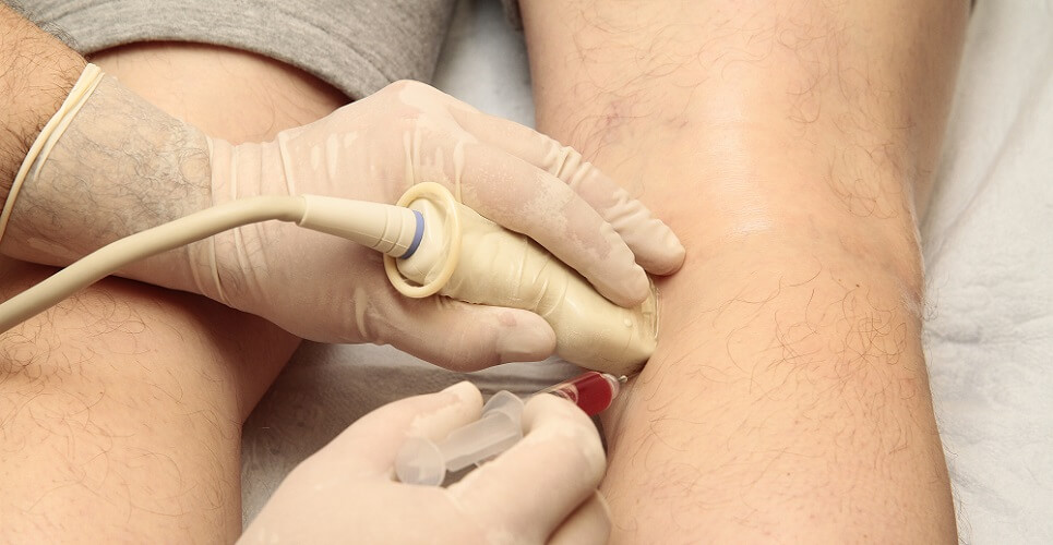 stem cell knee treatment