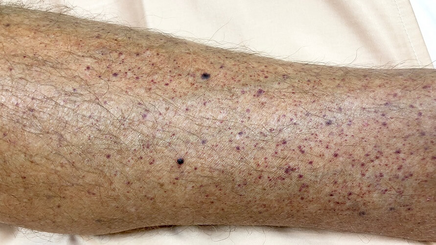thrombocytopenic purpura