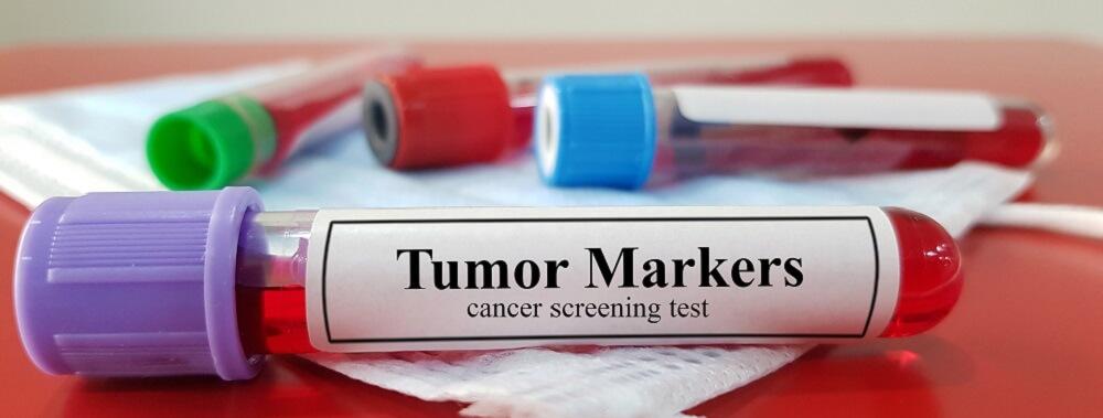 tumor marker antigens cancer blood test