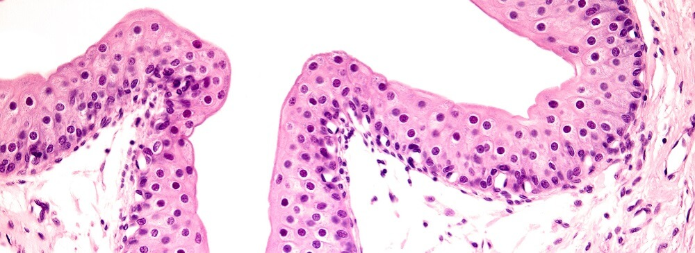 ureter urothelium cuboidal squamous cells muscular contraction stretch