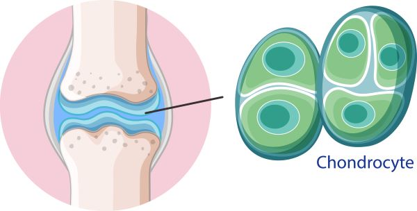 Mesenchymal stem cells differentiate into chondrocytes