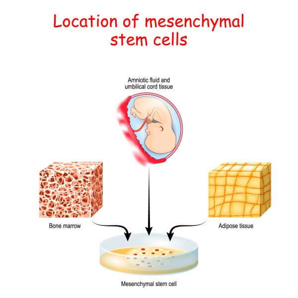 Mesenchymal stem cells occur in different types of tissue